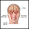 Transient Ischemic attack (TIA)