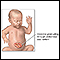 Infant abdominal hernia (gastroschisis)