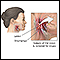 Oropharyngeal biopsy